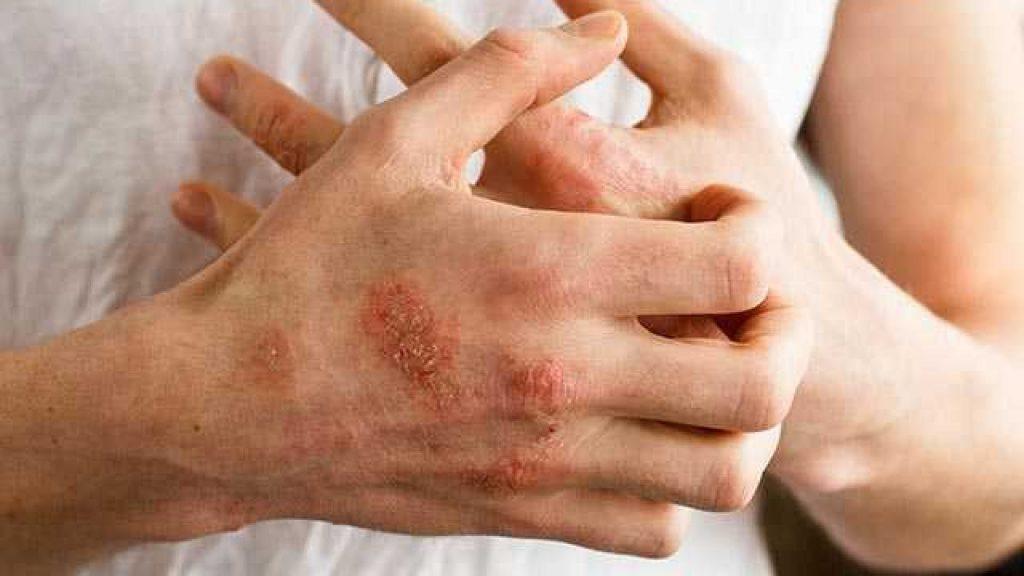 lateks alerjisi