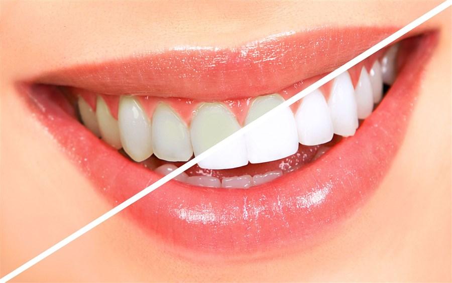 ağız ve diş bakımı nasıl yapılır