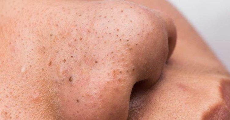 siyah noktalar için hindistan cevizi yağı