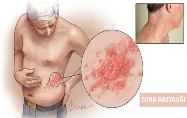 zona hastalığı önlenebilir mi