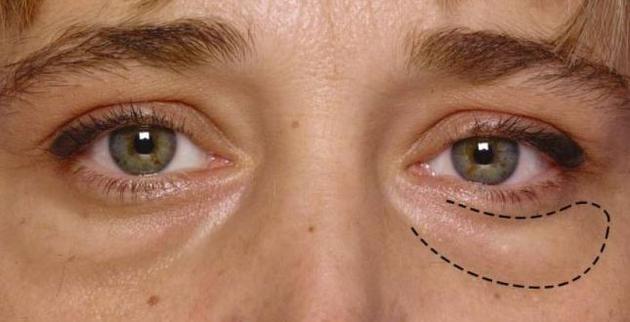 ameliyatsız göz altı morlukları maskesi
