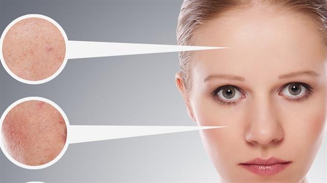 gözenek sıkılaştırıcı mısır unu maskesi