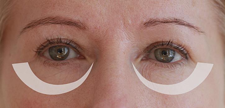 göz altı halkaları için maske