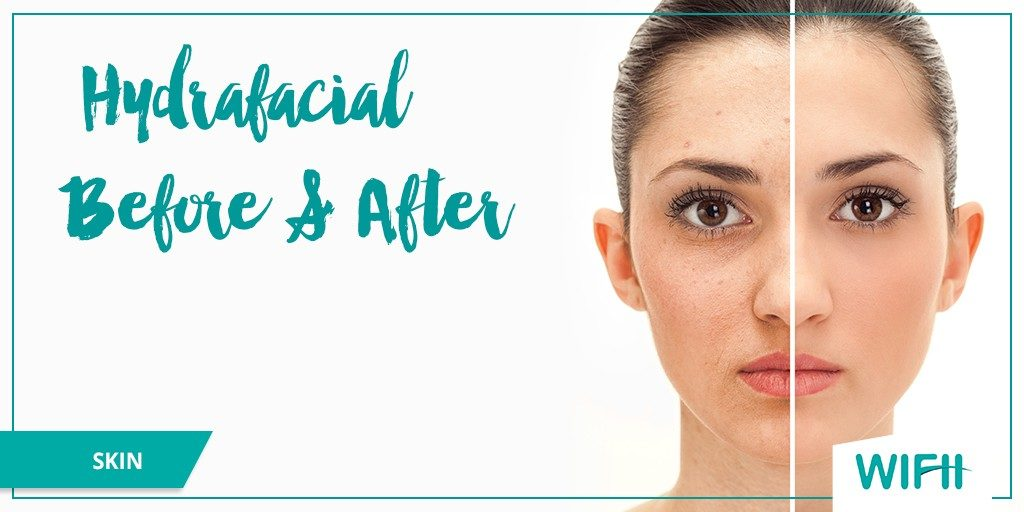 hydrafacial before after