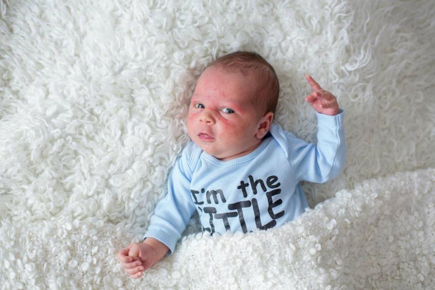 Bebeklerde Egzamaya Sebep Olan Nedir