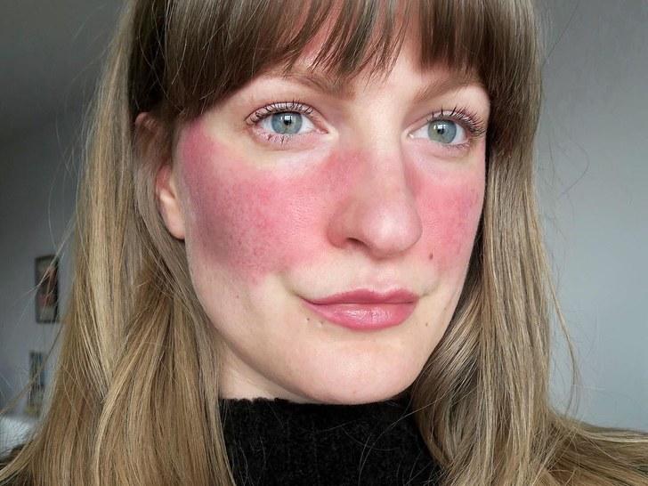 rosacea gül hastalığı
