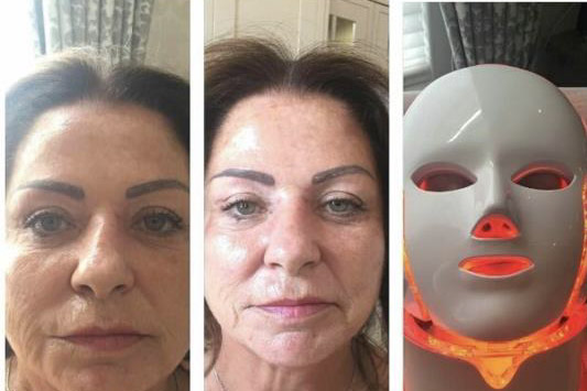 gençleştiren cilt maskesi