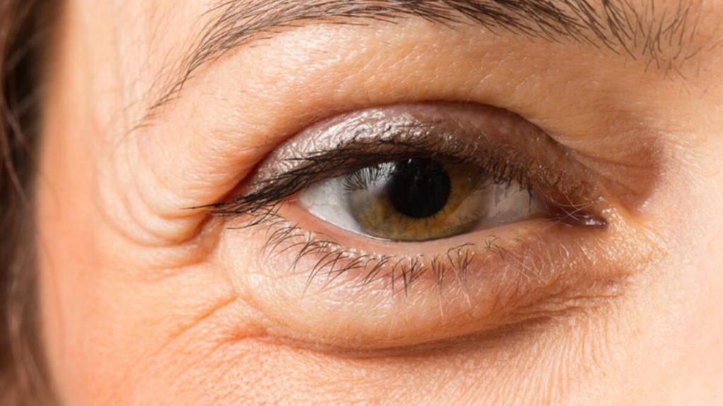 Göz altı şişmesi